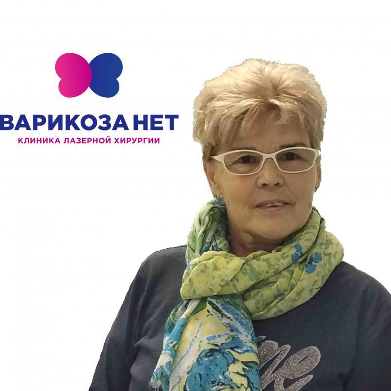 Лечение варикоза в г. Пермь